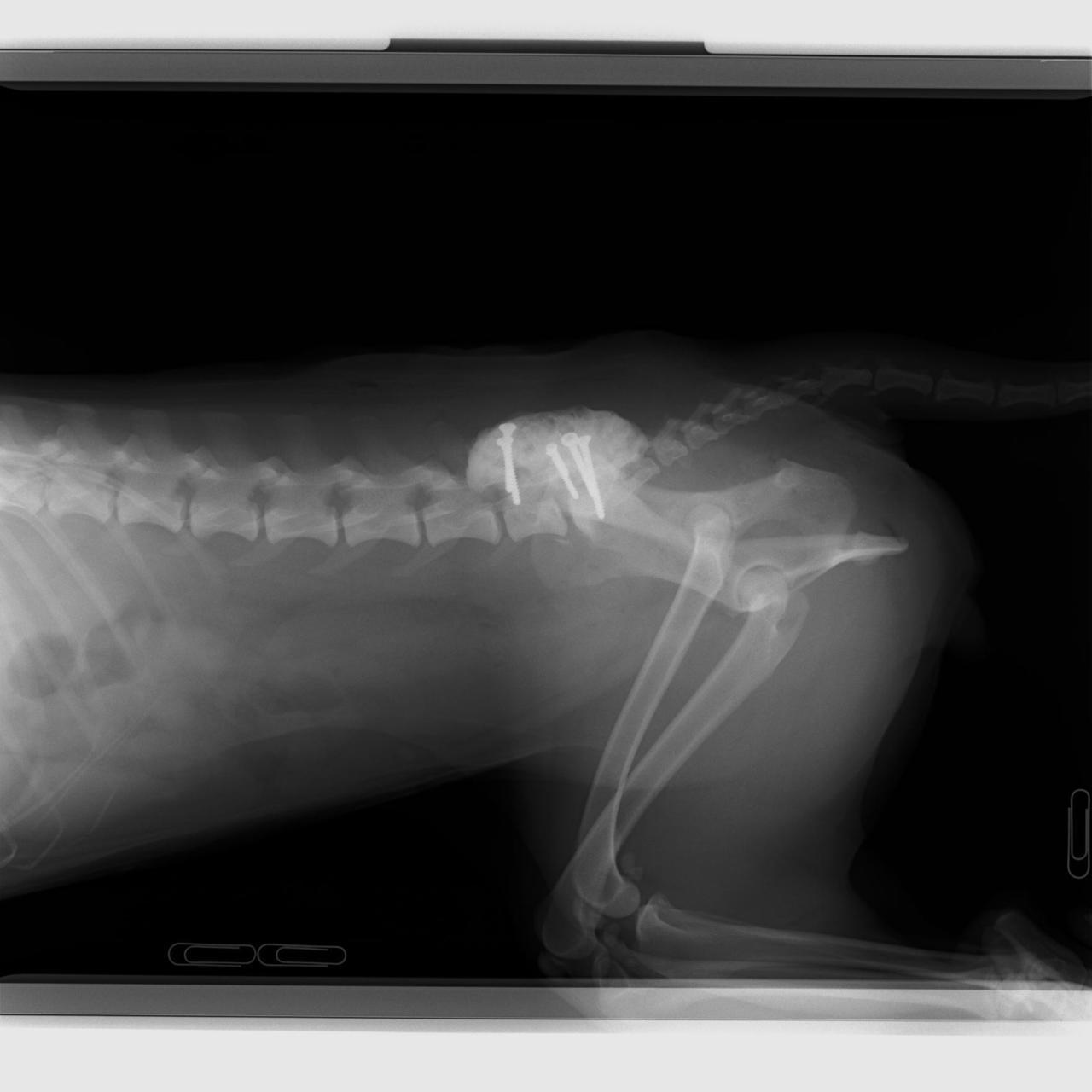 馬尾症候群に対する椎体固定術